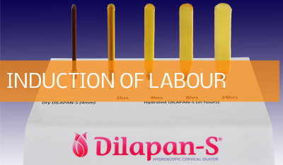 Mechanical Induction of Labour